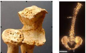 Fig. 5. Arthrose du coude au niveau des surfaces articulaires radio-ulnaires et hyperostose vertébrale ankylosante sur cypho-scoliose en vue antérieure (La Queue-en-Brie et Chevilly-Larue), © D. Hadjouis et B. Allard.